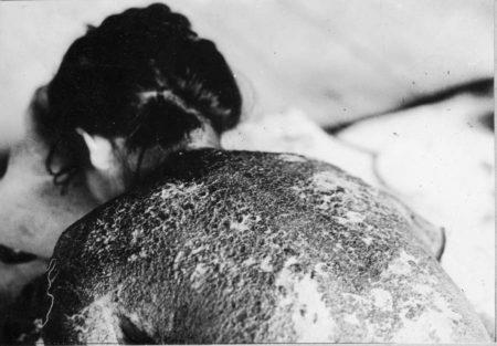 戦争体験vol.3 ヒロシマの被爆体験、原爆投下直後から3日間の救護活動